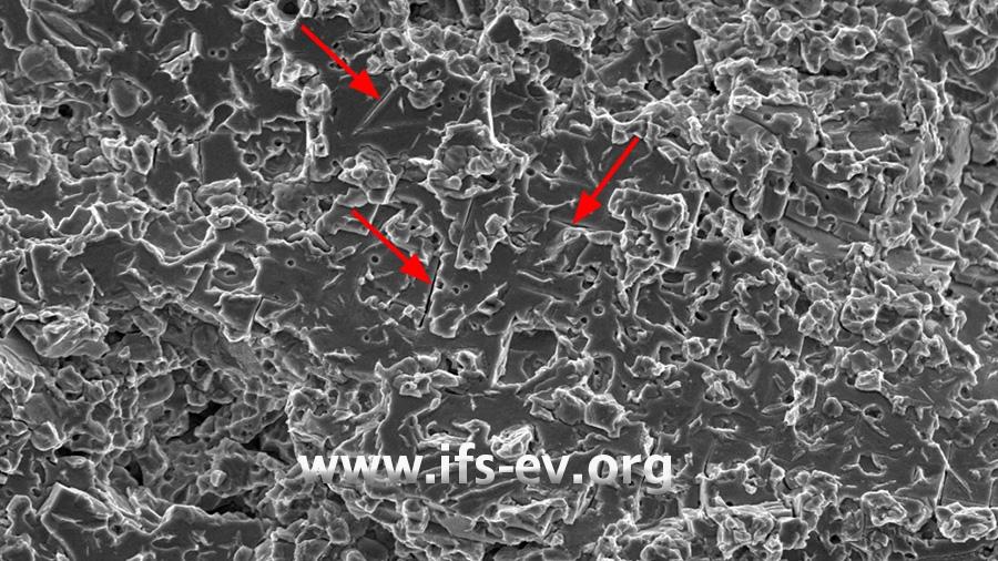 REM-Aufnahme der Bruchfläche: In der 2.400-fachen Vergrößerung zeigt sich ein verformungsarmer Bruchverlauf mit interkristallinen Strukturen (Pfeile).